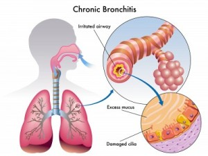Bronchitis-diagram
